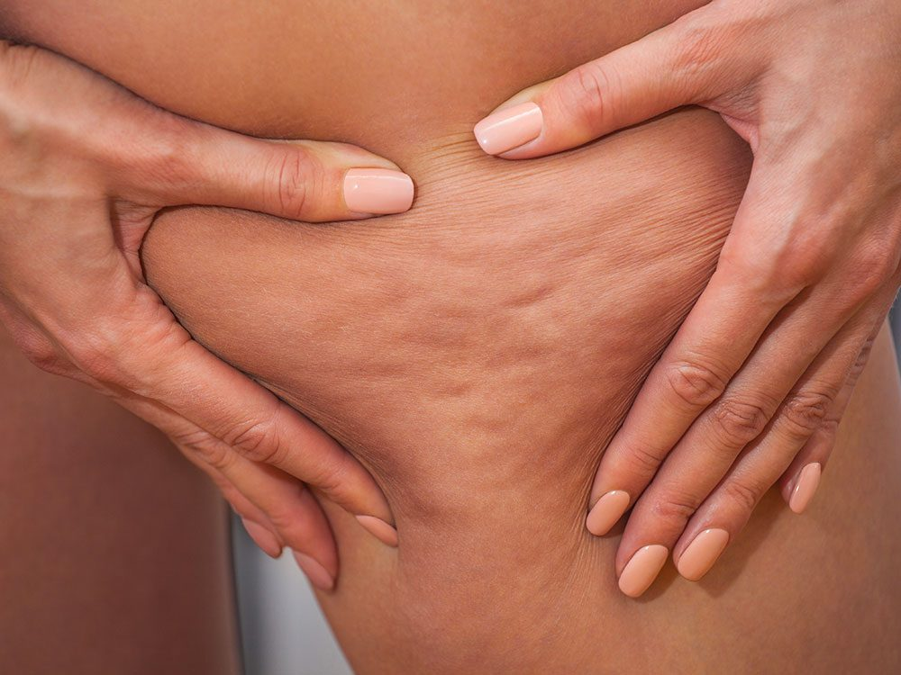Traitement anticellulite: les principales causes de la cellulite.