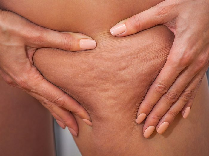 Traitement anticellulite: les principales causes de la cellulite.