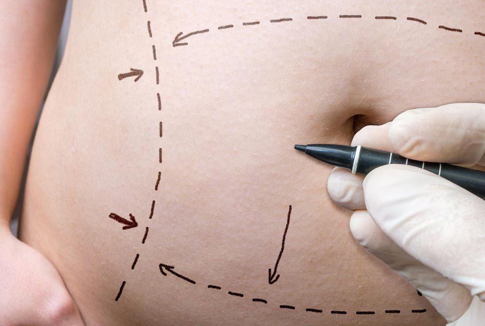 Pour avoir un ventre plat, vous pourriez subir une opération chirurgicale.
