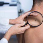 Hommes: 13 symptômes de cancer à ne jamais ignorer