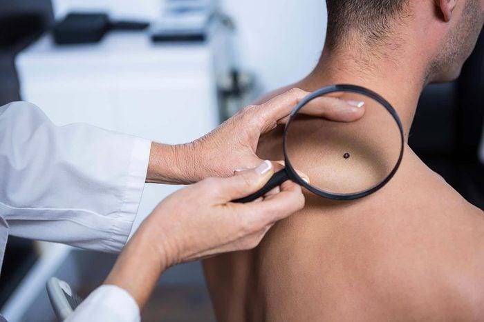 Symptôme de cancer chez l'homme : surveillez vos grains de beauté.