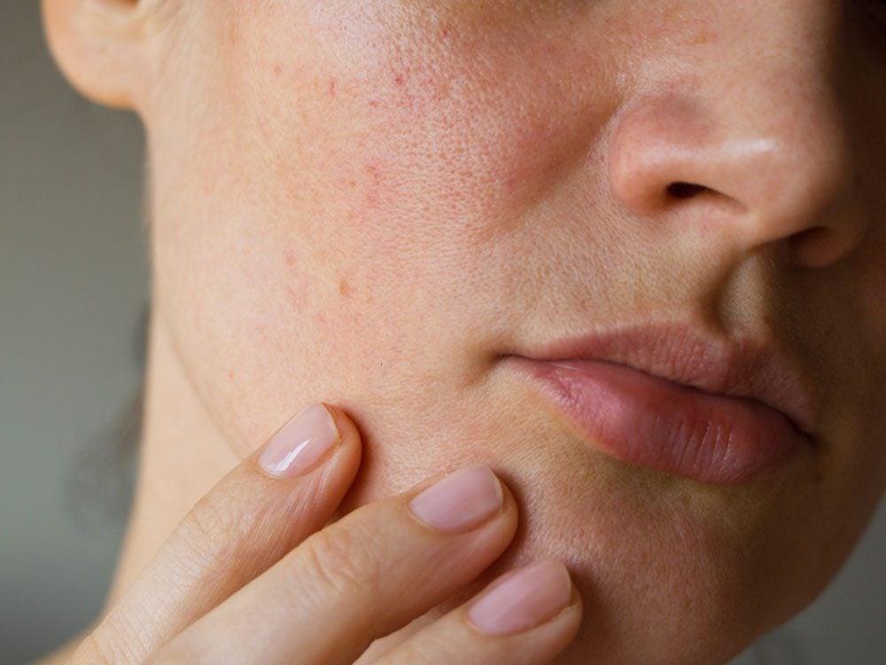 Avoir un menton fuyant peut indiquer une maladie telle que l'apnée du sommeil.