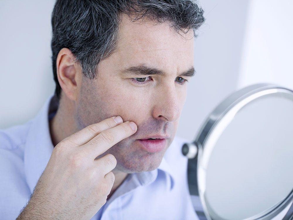 Votre peau sèche peut être un symptôme de maladie comme le diabète ou l'hypothyroïdisme.