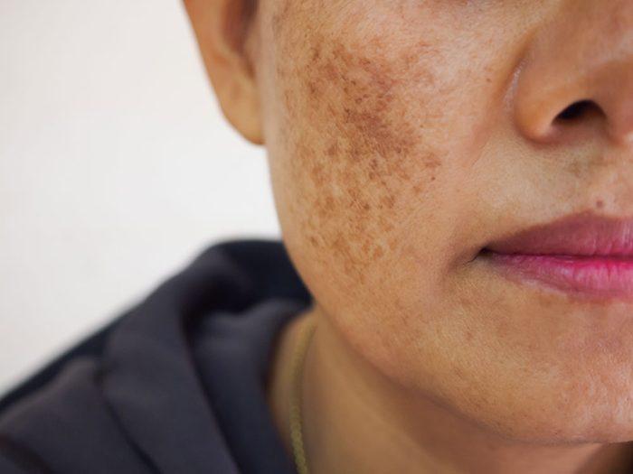 Les maladies liées aux éruptions et aux taches survotre visage.