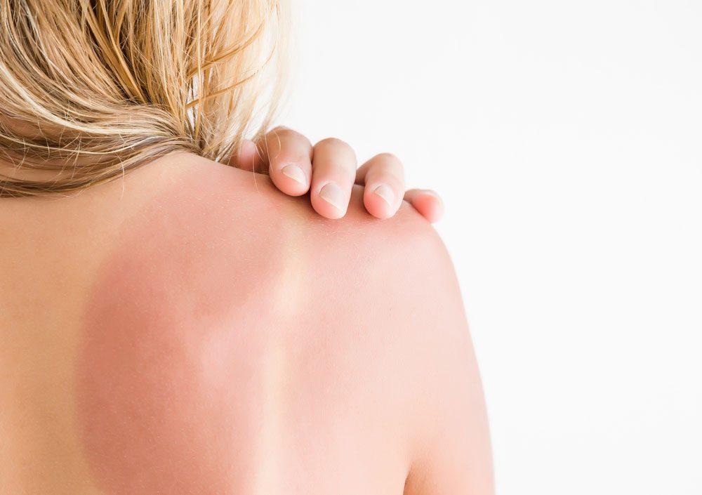 Le vinaigre de cidre peut soulager la douleur du coup de soleil.