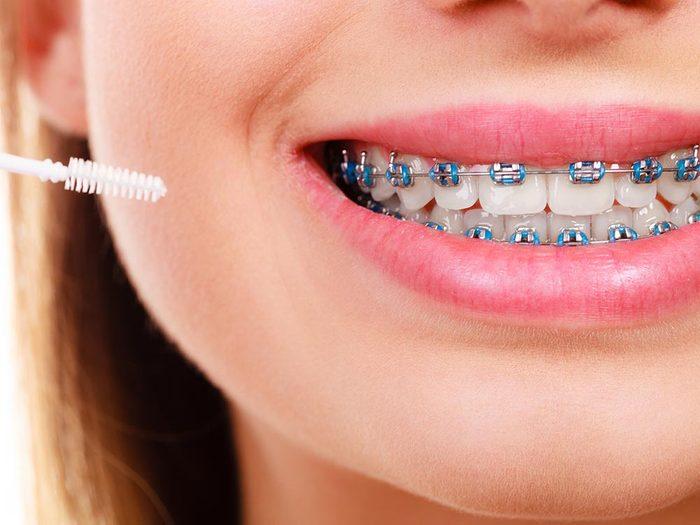 Un appareil dentaire mal nettoyé peut causer une mauvaise hygiène dentaire.