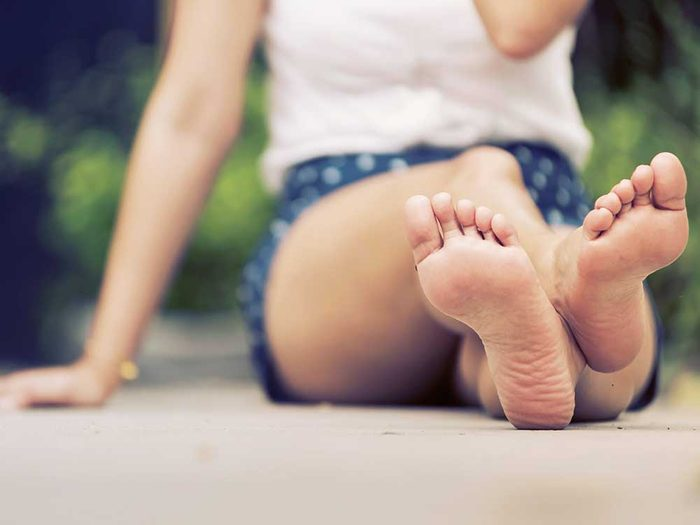 Vos pieds et vos mains: la cible parfaite pour les piqûres de moustiques!