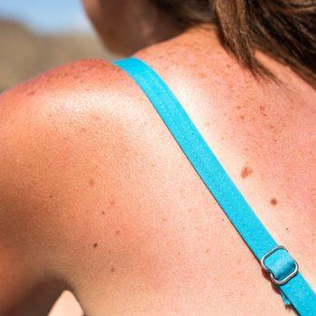 13 aliments pour prévenir les coups de soleil