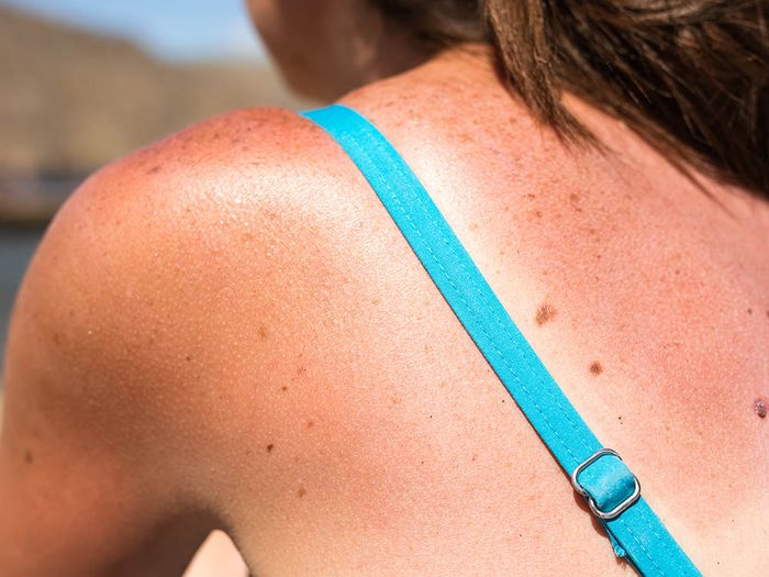 Le cancer de la peau peut se déclarer suite à des coups de soleil à répétition.