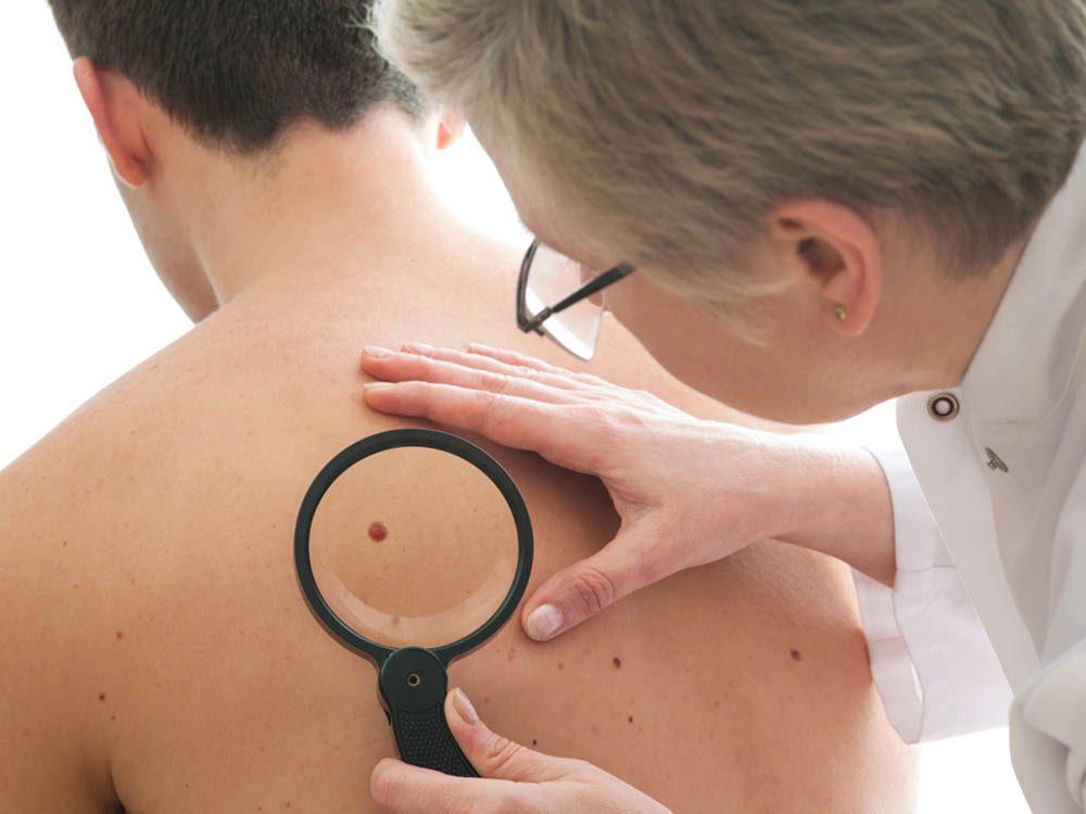 Détectez le cancer de la peau le plus tôt possible.