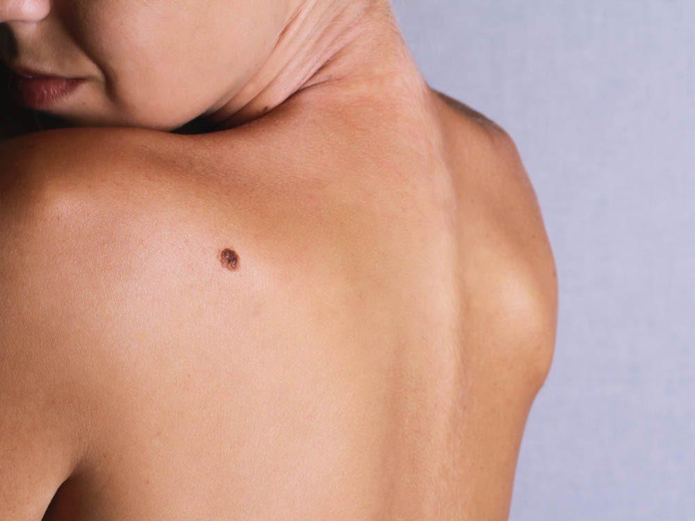 Détectez un possible cancer de la peau en inspectant vos grains de beauté.