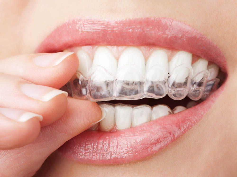 Porter un protège dents peut prévenir le mal de tête.