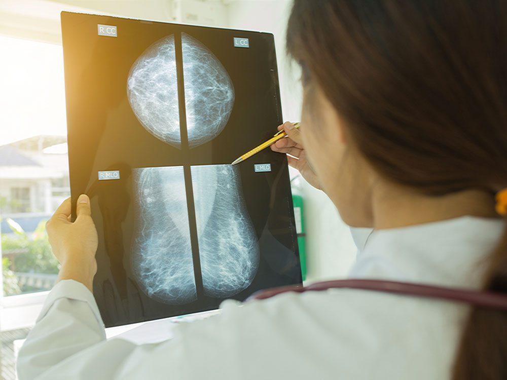 Mythe: la mammographie permet de trouver tous les cancers du sein.