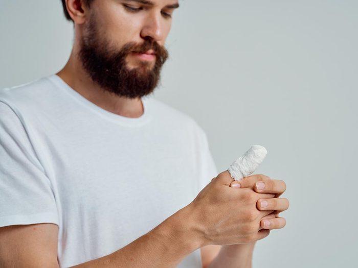 Utilisez le bicarbonate de sodium pour soulager une brulure superficielle.