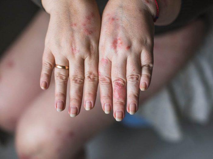 Mystères non résolus: L'allergie à l'eau