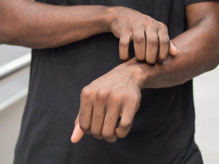 Mystères non résolus: La maladie des Morgellons