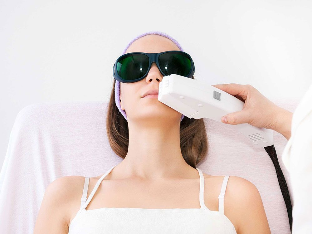 Le relissage au laser, la radiofréquence, les exfoliations chimiques (peelings) et autres peuvent vous débarrasser des rides autour de la bouche.
