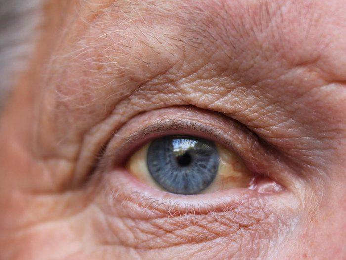 Santé des hommes: une jaunisse peut indiquer un problème au foie.