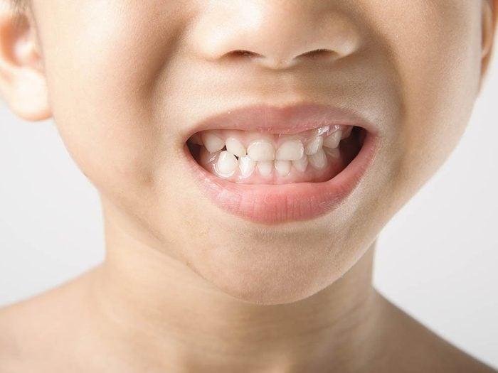 Conseil de dentistes: les dents de lait aussi peuvent avoir besoin de plombage.