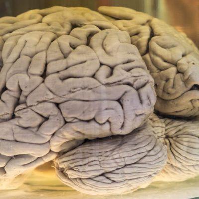 Parmi les objets volés les plus étranges, on retrouve le cerveau d'Einstein.