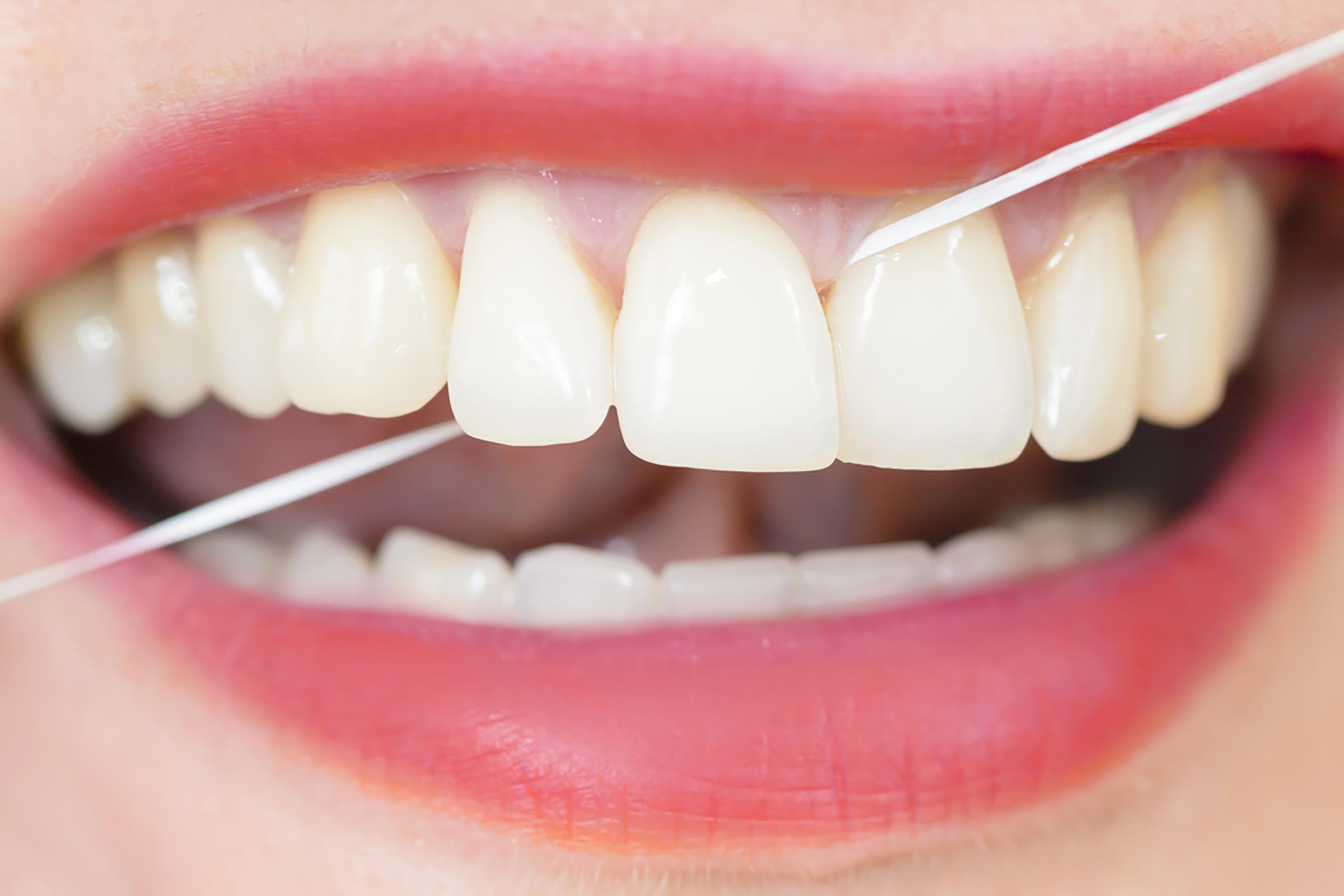 Conseil santé : passer la soie dentaire chaque soir