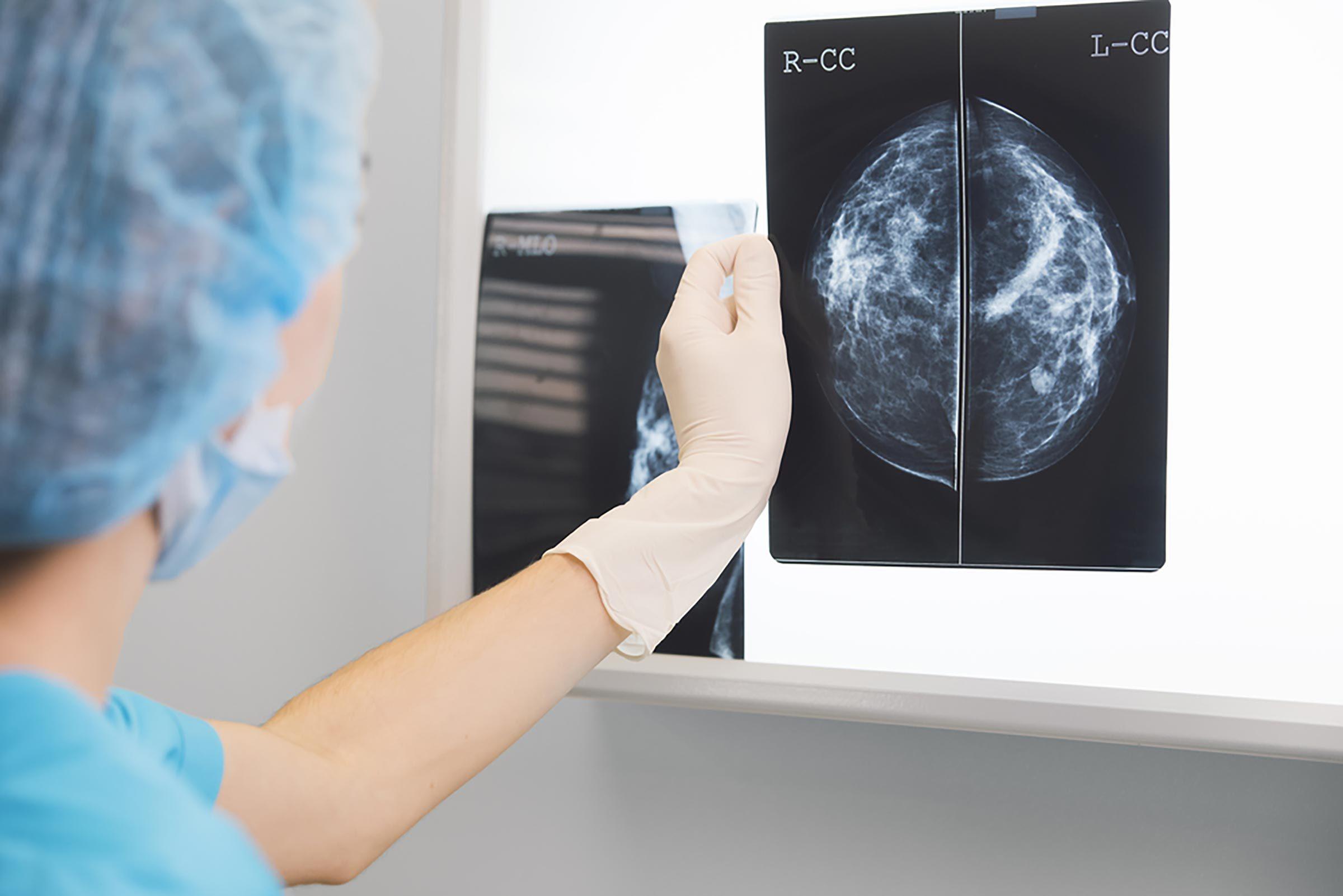 Conseil santé : avoir des mammographies régulières