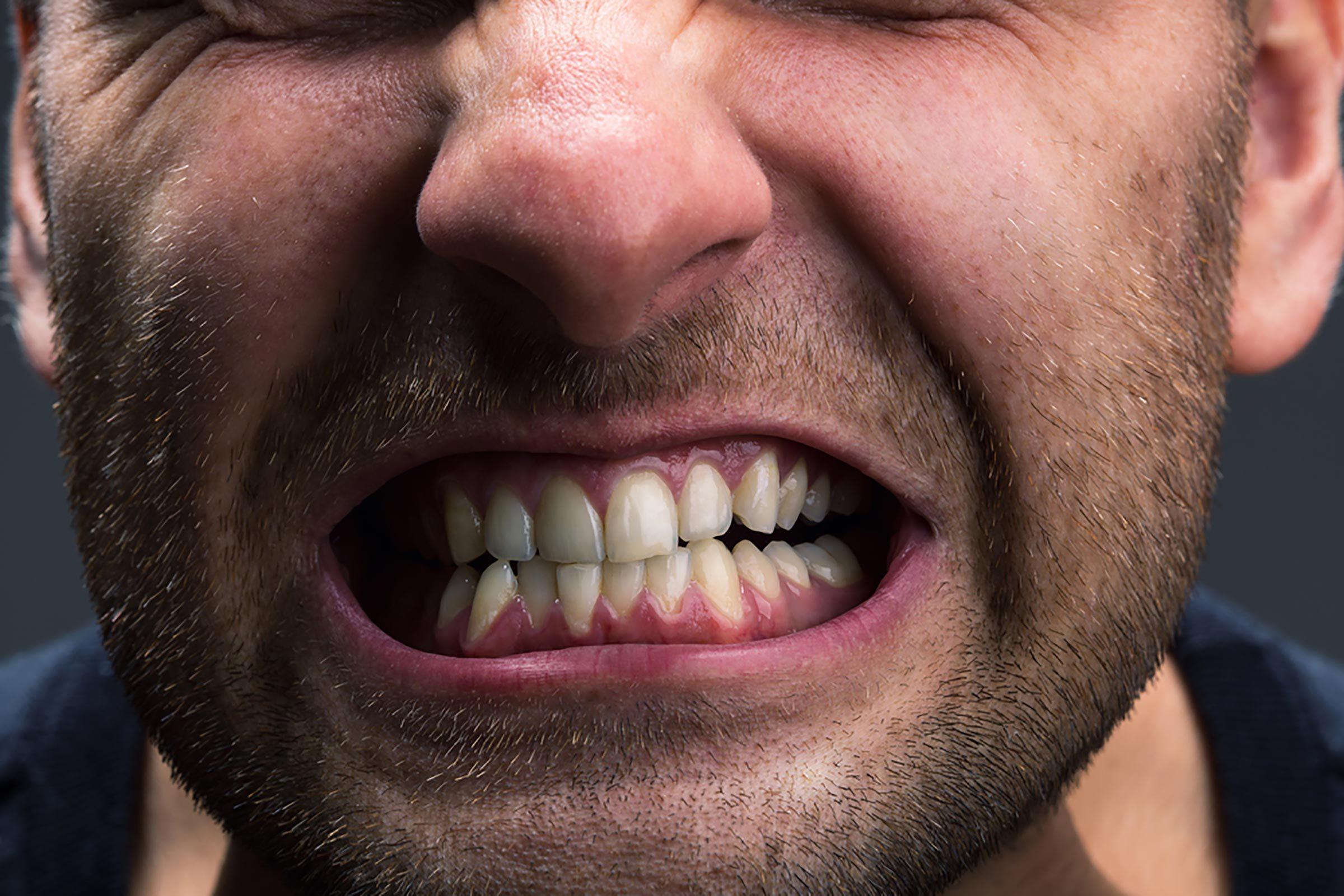 Symptôme du stress : Vous grincez des dents
