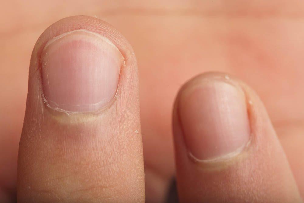 Votre dentiste ne se ronge pas les ongles.