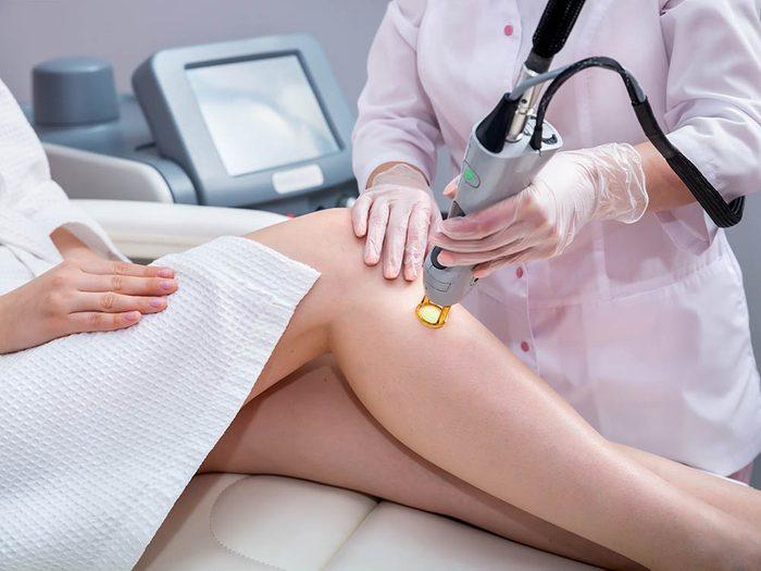 Prenez rendez-vous avec le dermatologue pour traiter vos vergetures au laser.