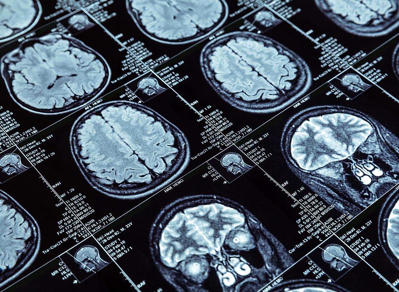 Les phtalates contenus dans le plastique pourraient retarder le développement du cerveau.
