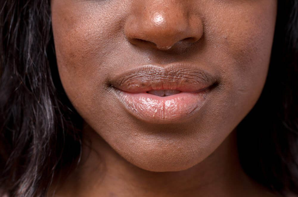 Les rides du visages peuvent être un signe d'hypertension.