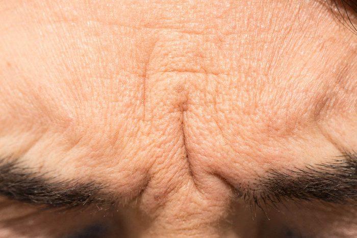 Les rides du visage peuvent révéler un risque de maladie cardiaque.