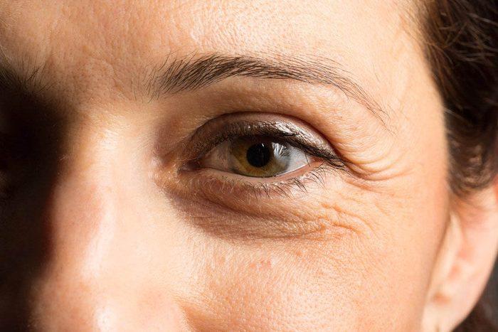 Vos rides du visage pourraient indiquer que vous êtes plus fragiles.