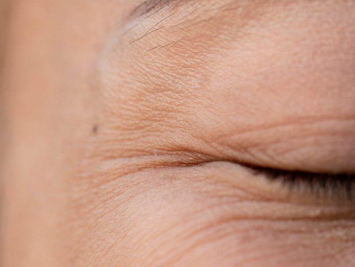 Les rides du visage peuvent être liées au cancer de la peau.