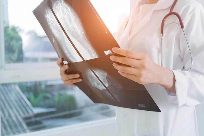 Tâches à faire : faire sa mammographie annuelle.