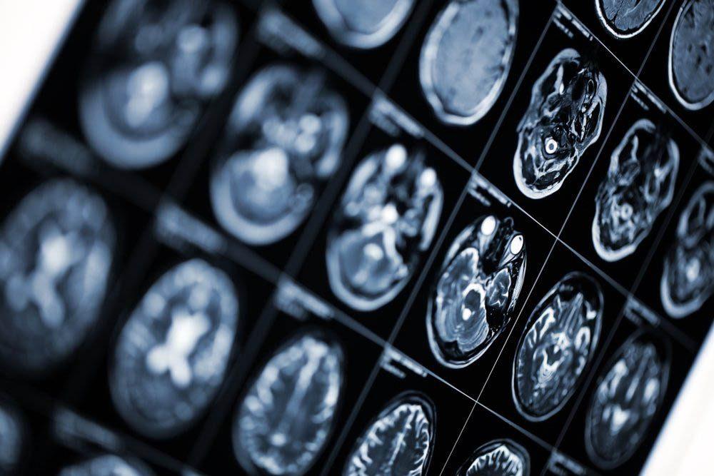 Alzheimer est une maladie qui évolue en 5 ou 7 stades.
