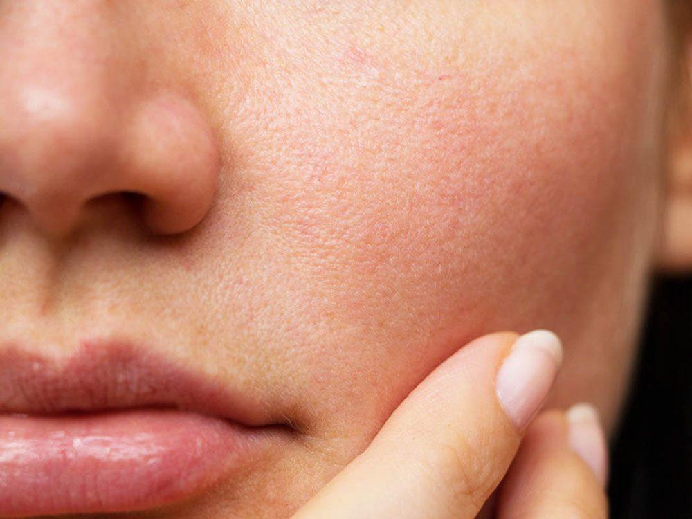 Corps en hiver: votre nez pourrait vous rendre malade.