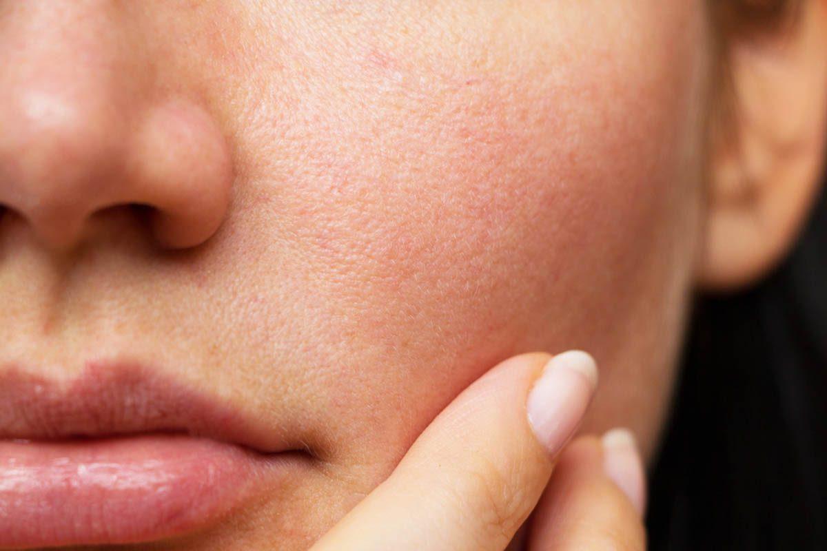 Corps en hiver : votre nez pourrait vous rendre malade.