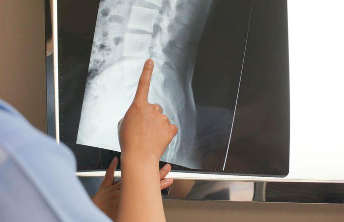 Mise en forme après 50 ans : l'ostéoarthrose fait partie du processus de vieillissement.