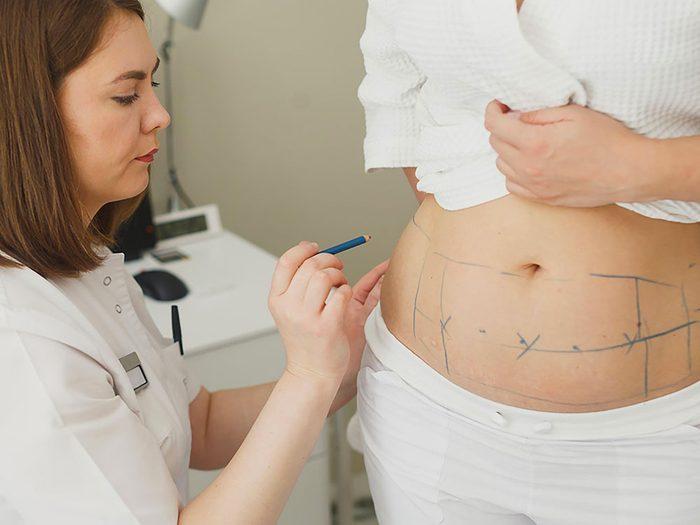 La liposuccion n'est pas un raccourci à la perte de poids.