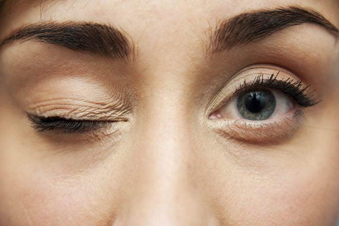 Se frotter les yeux diminue l'élasticité des paupières.