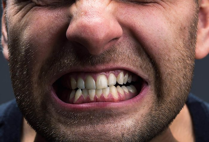 Symptôme de stress : vous grincez des dents.