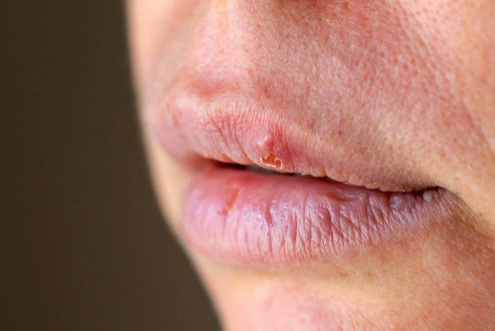Réaction du corps le matin : les coins de votre bouche sont craquelés.
