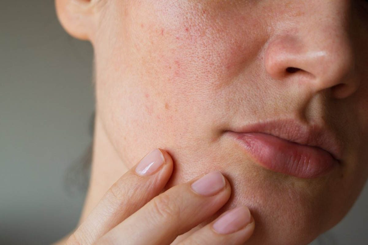 Réaction du corps le matin : vous avez la peau grasse.