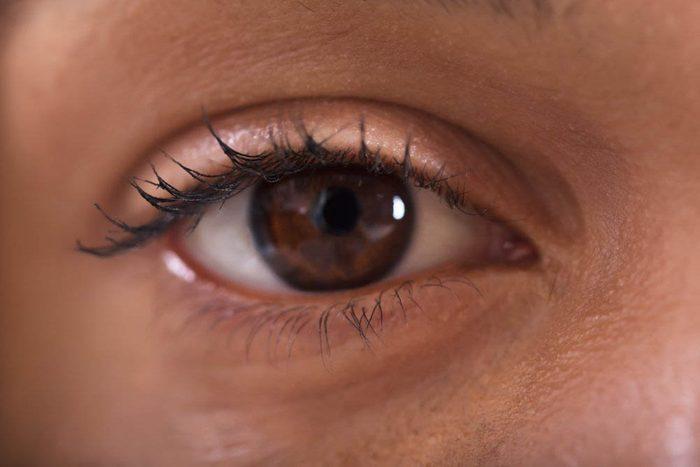 Réaction du corps le matin : vous avez les yeux bouffis