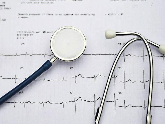 Des problèmes cardiaques peuvent être la cause de votre douleur entre les omoplates.