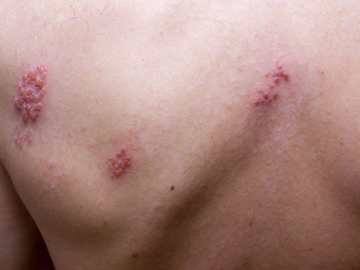 Le zona peut être la cause de votre douleur entre les omoplates.