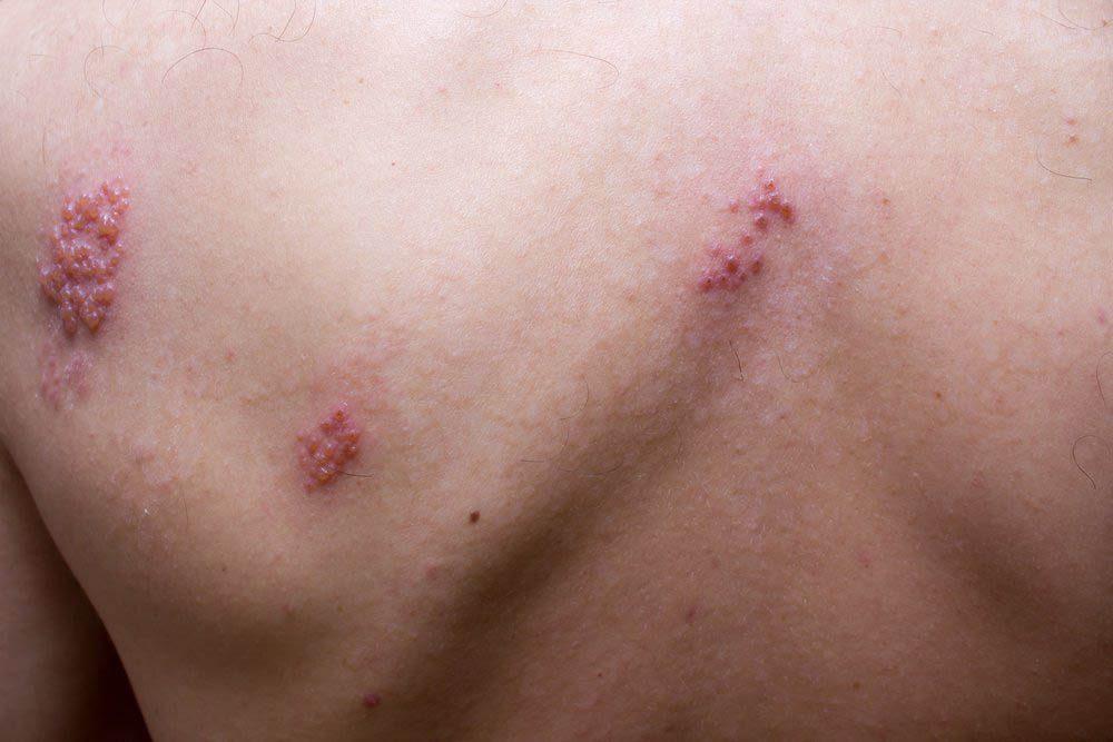 Une douleur entre les omoplates peut être le premier symptôme du zona.