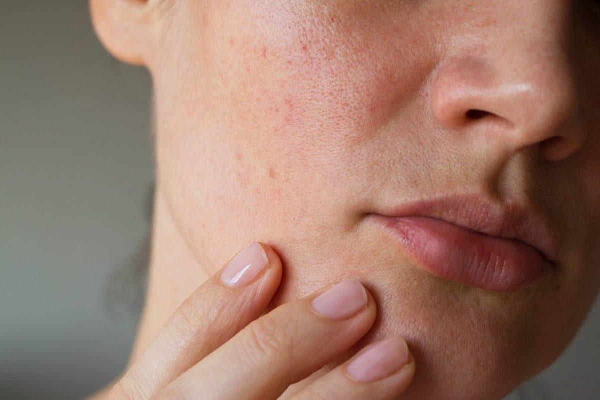 Le vieillissement de la peau peut être causé par la sécheresse de l'air.