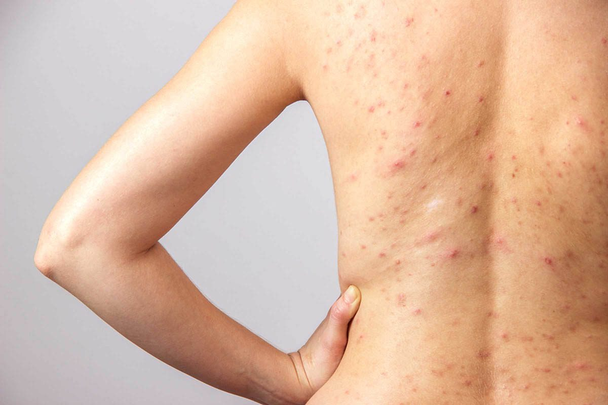 L'acné sur le dos, les bras et les cuisses est une question de génétique et de fluctuations hormonales.